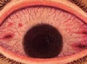 急性出血性结膜炎