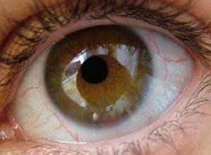 甲状腺相关眼病