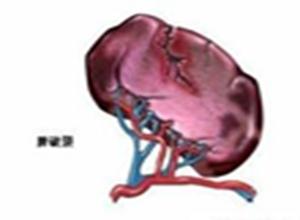 原发性脾淋巴瘤