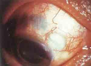 系统性红斑狼疮性巩膜炎