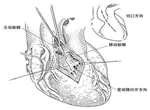 先天性主动脉瓣下狭窄