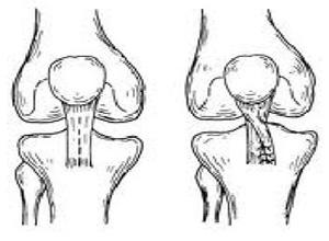 复发性髌骨脱位