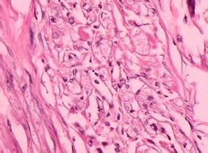 颗粒细胞瘤