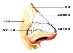 创伤性鼻中隔穿孔
