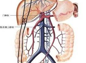 肠系膜上静脉血栓形成