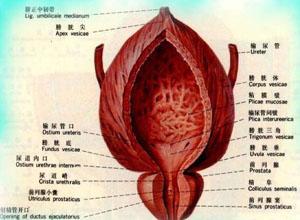结核性膀胱自发破裂