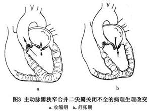 二尖瓣和主动脉瓣的疾患