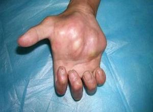 骨的原发性淋巴瘤