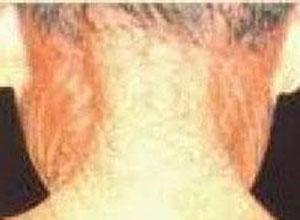 光线性弹力纤维病