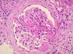 慢性肾小球肾炎