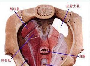 盆底痉挛综合症