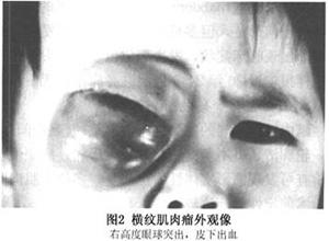 眼眶横纹肌肉瘤