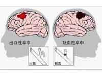 出血性脑卒中