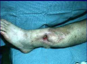 化脓性骨髓炎