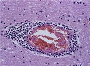 急性化脓性脑膜炎