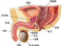睾丸畸胎瘤