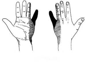 手部神经损伤