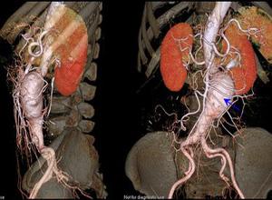 腹主动脉瘤
