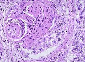 特发性腹膜后纤维化