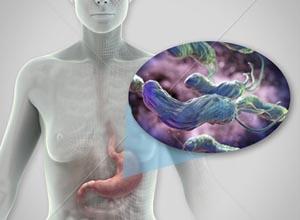 幽门螺杆菌感染