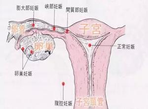 输卵管妊娠