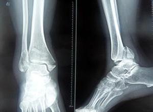 踝关节骨折