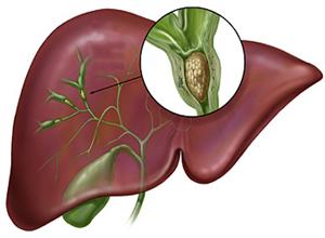 原发性硬化性胆管炎