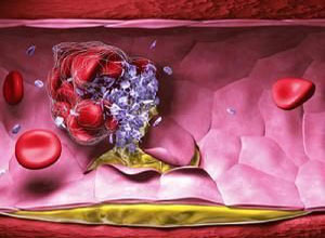 老年人播散性血管内凝血