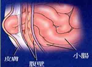 妊娠合并肠梗阻