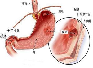 萎缩性胃炎