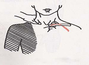 锁骨下动脉-腋动脉瘤