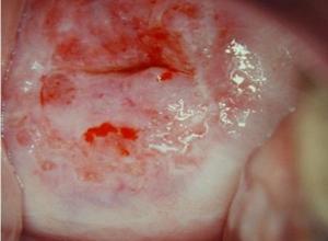 急性宫颈炎