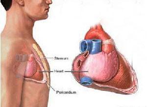 肺-胸膜阿米巴病