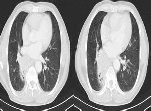 小儿肺隔离症
