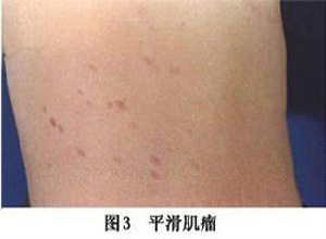 皮肤平滑肌瘤