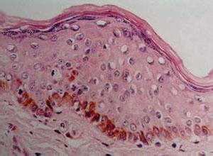 小儿基底细胞痣综合征