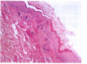肠病性肢端皮炎