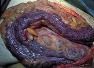 小肠血管瘤