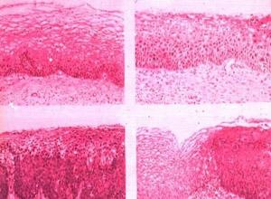 外阴表皮内瘤变