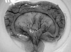 非肾上腺素增生性假两性畸形