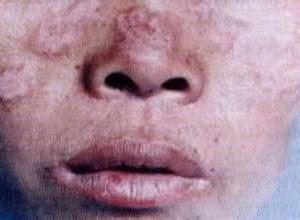 营养不良性皮肤钙化病