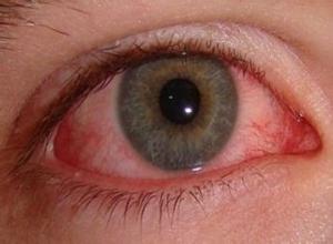 急性虹膜睫状体炎