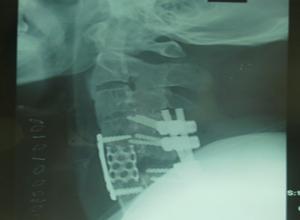 颈椎后脱位