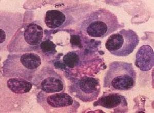 肥大细胞增多症