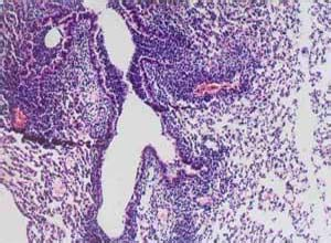 呼吸道合胞病毒肺炎