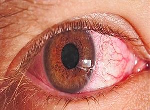 春季性结膜炎