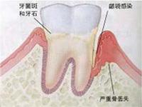 青春前期牙周炎