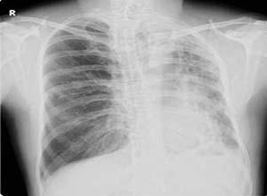 先天性肺发育不全