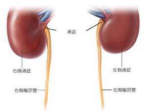输尿管损伤