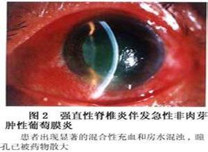 强直性脊柱炎及其伴发的葡萄膜炎